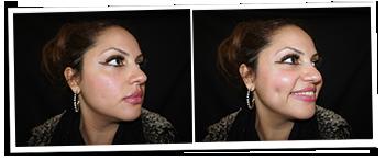 Dimple Creation Surgery - London Glasgow UK ::